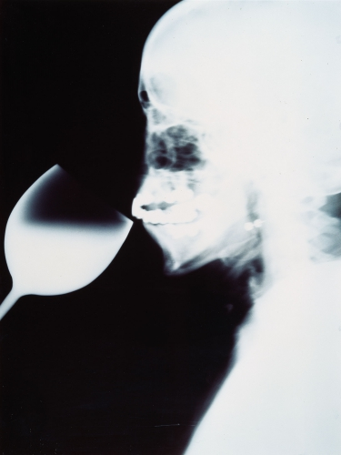 X-Ray-1991-C.jpg